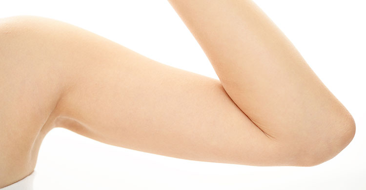 Implante anticonceptivo. Clínica Cire